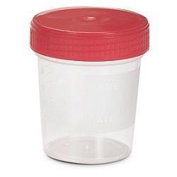 Contenitore Sterile per la Raccolta delle Urine 120ml