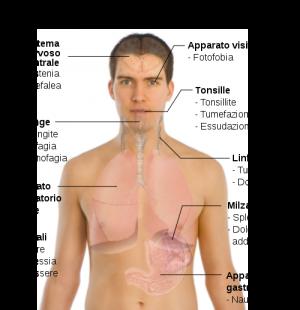 Mononucleosi infettiva: sintomi e come curarla