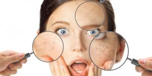 Combatti la pelle secca con l'Acido Ialuronico!