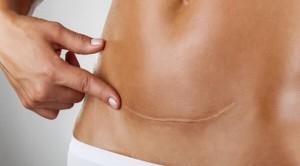 Come trattare le cicatrici chirurgiche