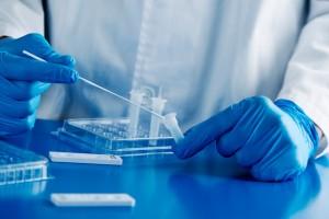 Tamponi e test sierologici per il Covid: facciamo chiarezza